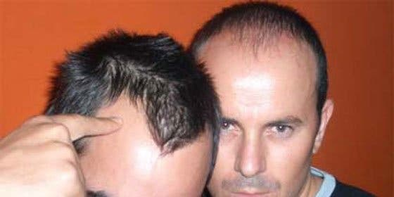Alopecia cicatrizal: causas y efectos.