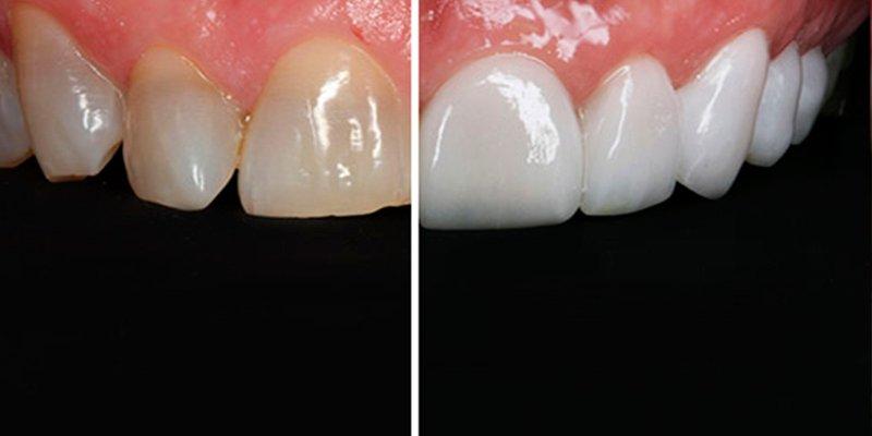 ¿Sabes cuáles son los tratamientos más demandados de la Estética Dental?