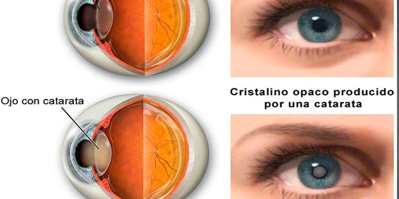 """La aparición del glaucoma con las cataratas es """"muy común"""""""