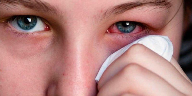¿Sabes que las lluvias y el viento primaveral pueden aumentar los casos de conjuntivitis alérgica?