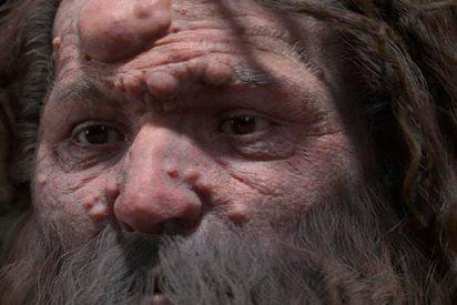 Así era el rostro real de este hombre de Cromañón que sufría de una dolencia genética
