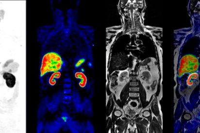 Así es la nueva técnica híbrida de diagnóstico por imagen que detecta mejor tumores blandos