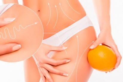 ¿Sabes que diferencias hay entre una liposucción y una lipoescultura?