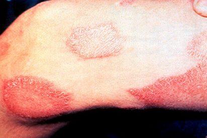 ¿Sabes cuáles son las enfermedades de la piel que más se investigan en España?