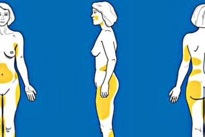 Cirugía estética: ¿Cuándo es eficaz y cuáles son los riesgos de la liposucción o lipoescultura?