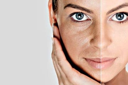 Cirugía estética: El rejuvenecimiento facial con IPL