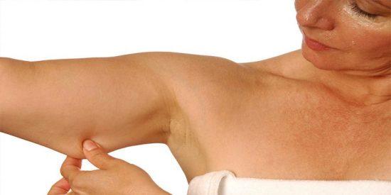 ¿Sabes que la cirugía plástica de los brazos se ha disparado?