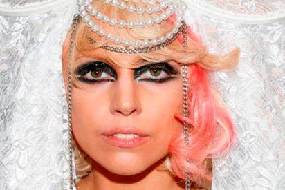 La cirugía estética es la solución que ha encontrado Lady Gaga para todos sus males
