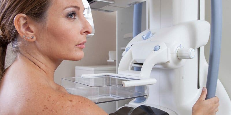 ¿Sabías que la terapia hormonal sustitutiva no produce cáncer de mama?