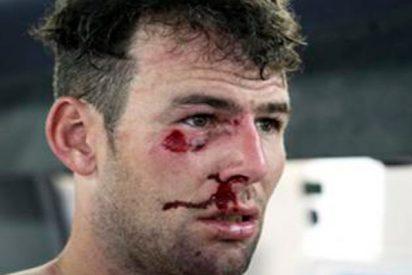 Así fue la brutal caída de Mark Cavendish tras chocar con una isleta