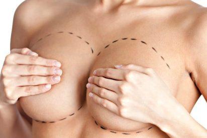 Cirugía estética: La mamoplastia o 'ponerse' pecho