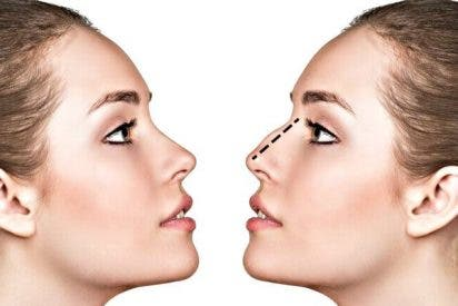 Cirugía estética: La rinoplastia o modificación de la nariz