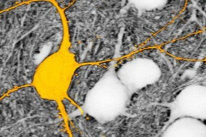 Esta nueva técnica de microscopía visualiza todas las células de una región cerebral
