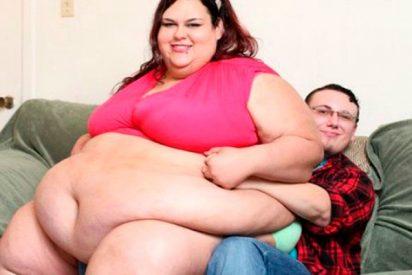La 'paradoja de la obesidad'