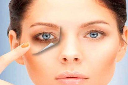 Con estos tratamientos estéticos acabarás con tus ojeras