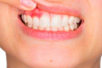 Claves para saber si tienes periodontitis