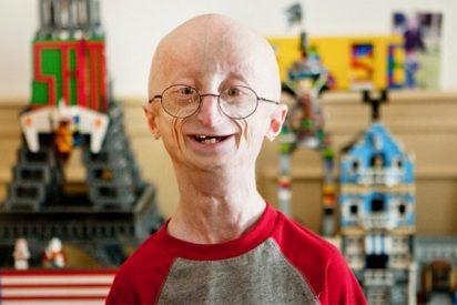 ¿Sabes qué es la progeria?