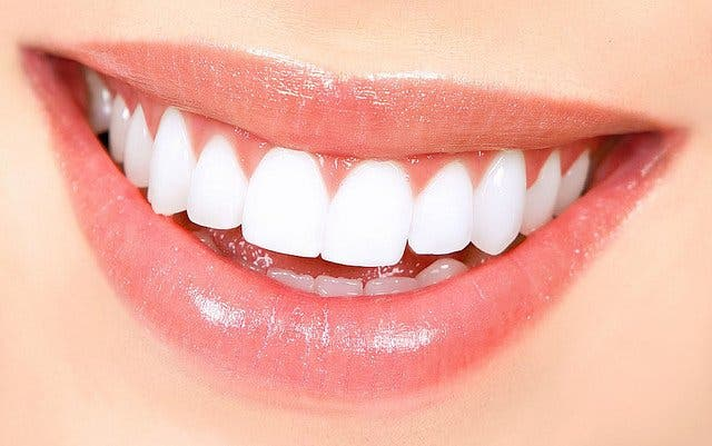 Flash Smile: el secreto de una sonrisa deslumbrante y perfecta
