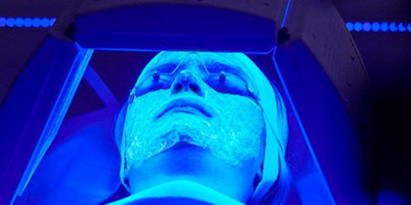 Así es la nueva terapia no invasiva que combate el acné mediante fotobiomodulación