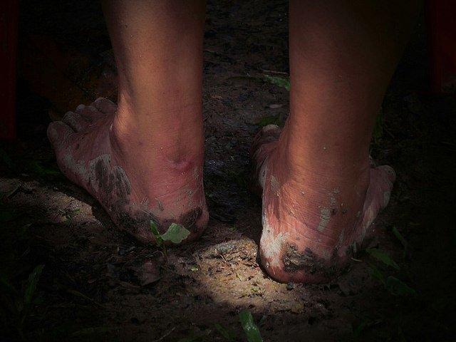 ¿Sabías que las profesiones que más perjudican a los pies son las que requieren estar todo el día de pie, sentados o en cuclillas?