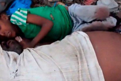 ¡Terrible!: Este niño se aferra a su difunto padre tras un bombardeo saudí en Yemen