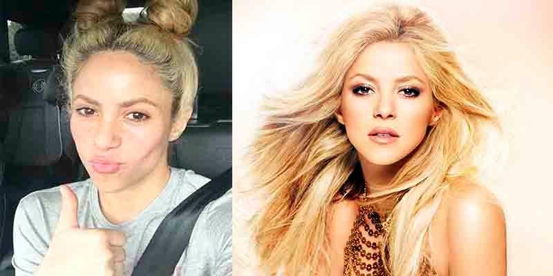 ¿Sabes cuál es la técnica con la que disimula Shakira su alopecia?