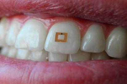 Crean un implante dental que puede monitorizar lo que comes o bebes