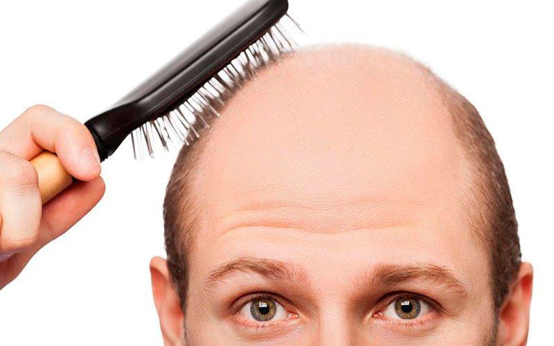 Estos son los síntomas de la pérdida de cabello.