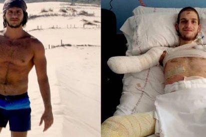 Le amputan a este chico los brazos y las piernas por un diagnóstico erróneo