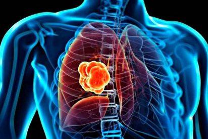 Descubren un nuevo biomarcador para el diagnóstico precoz del cáncer de pulmón