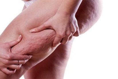 Estos son los tratamientos médicos infalibles para combatir la celulitis