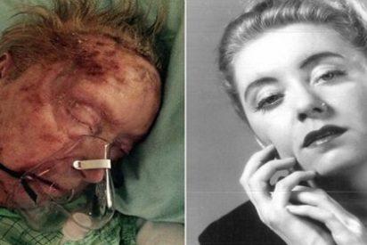 La terrible agonía de una exmodelo que fue comida viva por garrapatas