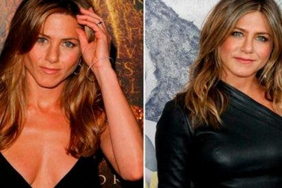 ¿Sabes cuántas operaciones se ha hecho Jennifer Aniston?