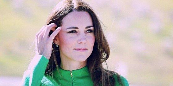 El antes y el después de Kate Middleton tras inyectarse botox