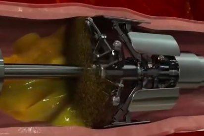 Longevidad: Los robots acabarán con el colesterol en nuestras venas y arterias