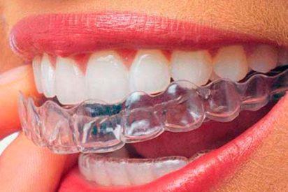 Si te van a poner ortodoncia lo mejor es comenzar con una dieta blanda