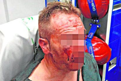 Unos facinerosos reconocen a un policía de paisano y lo apalean ayudados por su feroz madre
