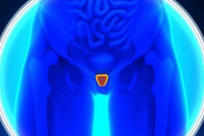 Descubren que el 40% de las biopsias de próstata podrían evitarse con un nuevo examen de sangre