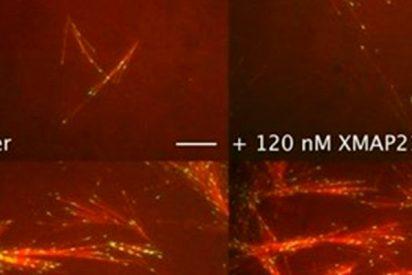 Esta proteína es el eslabón perdido que forma el 'esqueleto' de las células