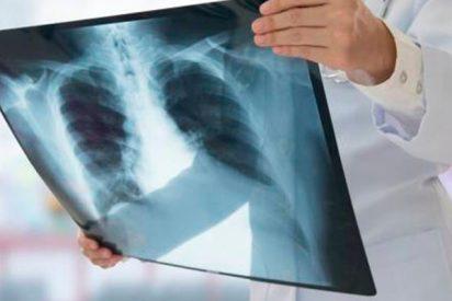 ¿Sabías que casi la mitad de pacientes con enfermedad tromboembólica venosa en España presentan una embolia de pulmón?