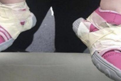 Bebé herido tras que unos empleados de guardería le pegasen los zapatos a los pies con cinta adhesiva