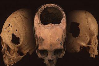 Imperio Inca: 8 de cada 10 pacientes sobrevivían a las trepanaciones craneanas
