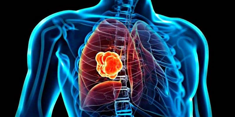 Así es la nueva terapia común contra el cáncer que puede ser eficaz para un tumor de pulmón no tratable
