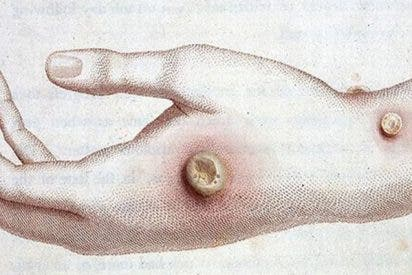 Adolescente se infecta con un virus del siglo XVIII tras alimentar a varios terneros