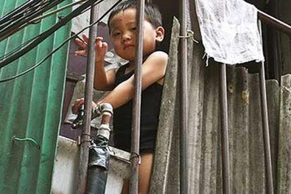 Este niño de 4 años se salva de una muerte segura al quedar atrapada su cabeza en un quinto piso