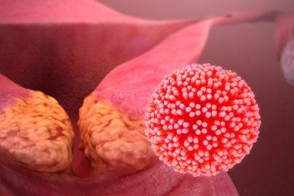 La ignorancia que propaga el cáncer de cuello uterino