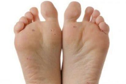 Los 5 mejores consejos para cuidar tus pies este verano