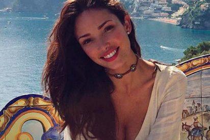 Esta modelo de Victoria's Secret publica fotos tras ser picada por chinches en un hotel