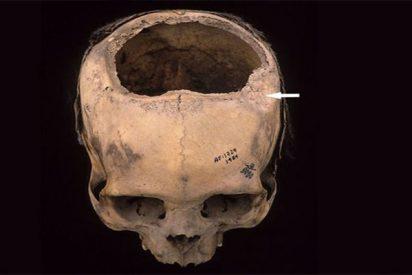 Descubren que 8 de cada 10 pacientes sobrevivían a las trepanaciones craneanas hechas por los Incas