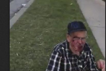 Mujer racista agrede a un mexicano de 91 años con un ladrillo en EE.UU